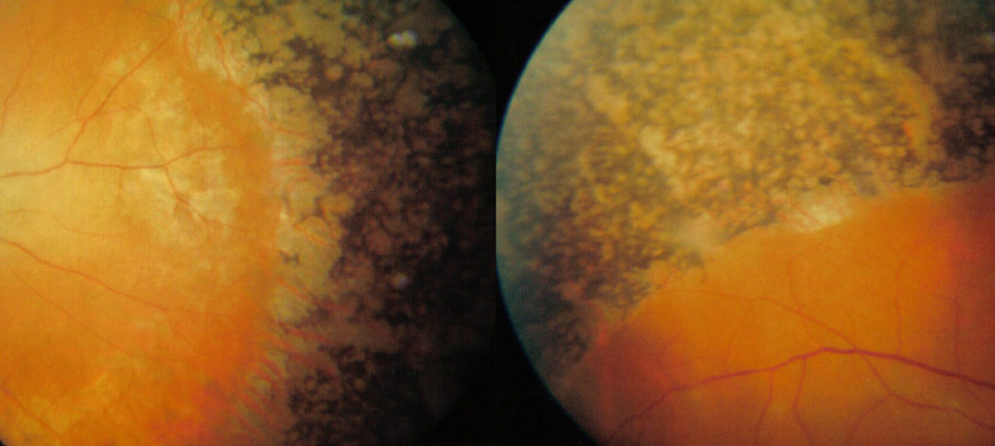 Augenhintergrund einer Person mit Retinopathia pigmentosa (in diesem Fall Refsum-Syndrom).